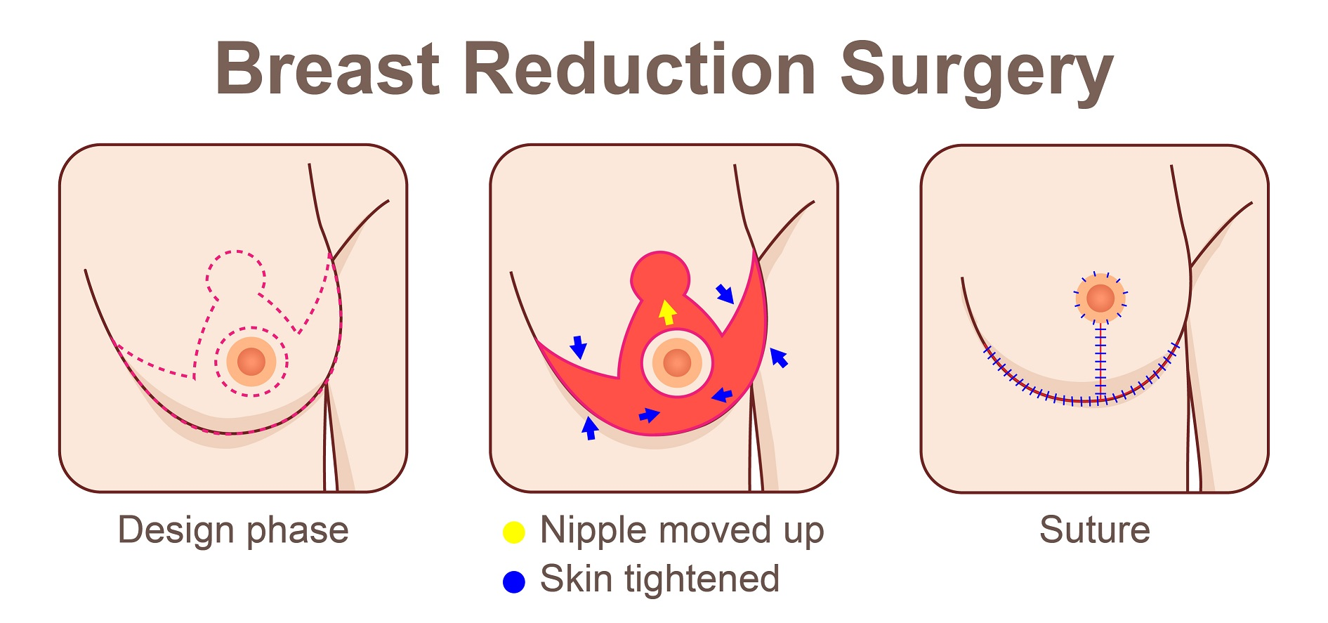 What should you know about breast reduction surgery before you go for the surgery?
