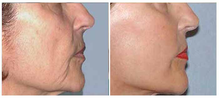 Want to improve your looks? Don't compromise; go to the best plastic surgeon in Delhi!