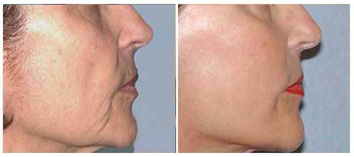 Face lift surgery in delhi