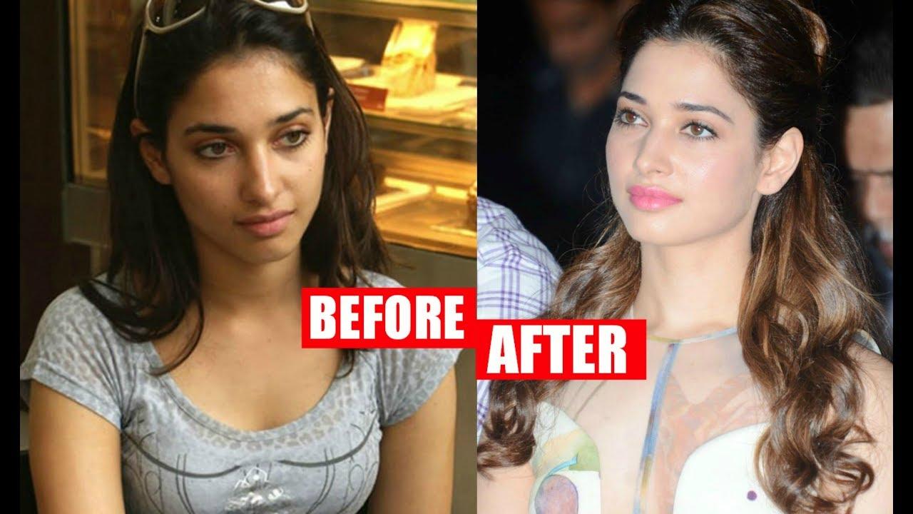 How Plastic Surgery Transformed b-actresses into Divas?