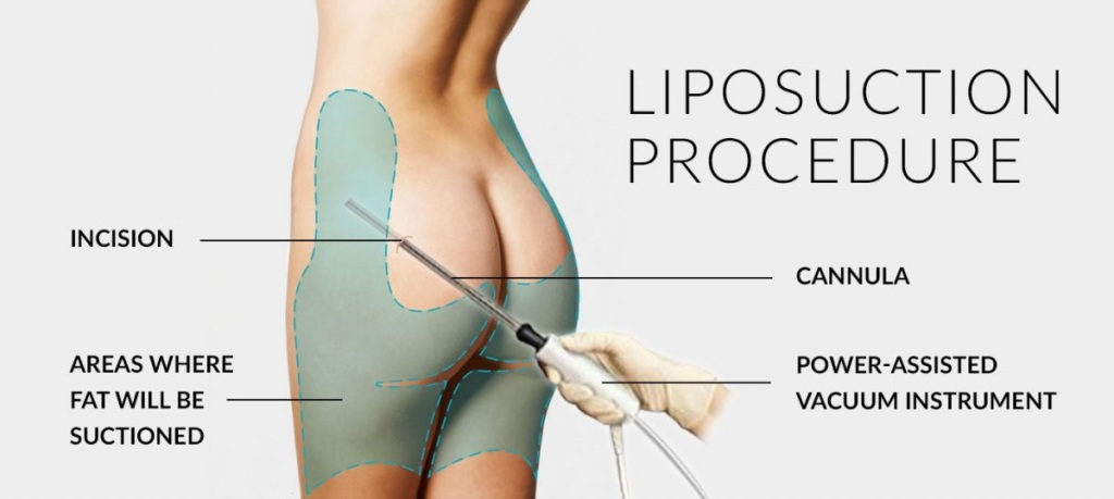 Reshape Specific areas of your Body through Liposuction Surgery