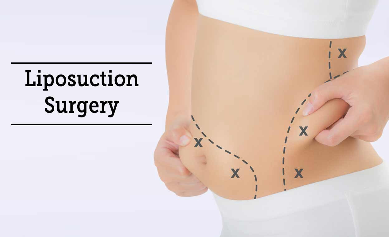 Liposuction is the second most popular cosmetic surgery. Ever wondered why?