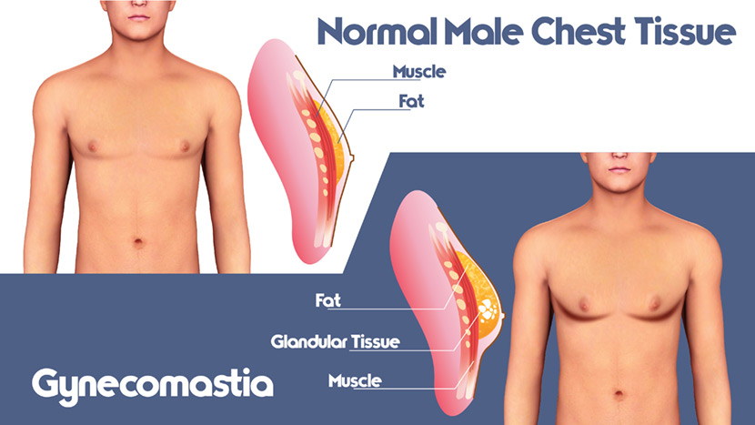 Gynecomastia can Affect your Physique