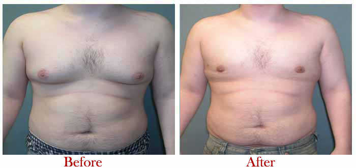 How Gynecomastia Surgeon Can Ease Your Pain?