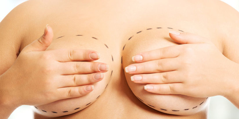 Why should you consider mammaplasty?