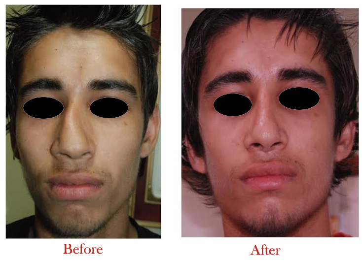 Time is running out! Think about these benefits of nose surgery