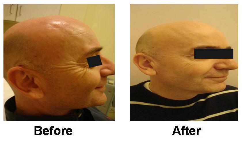 Botox Treatment in Delhi