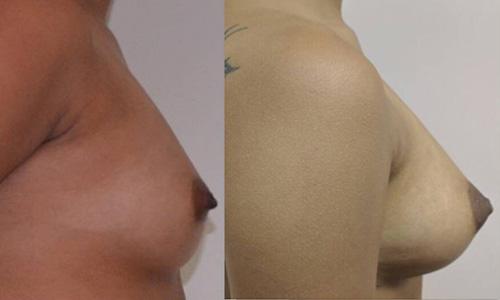 Breast augmentation in delhi