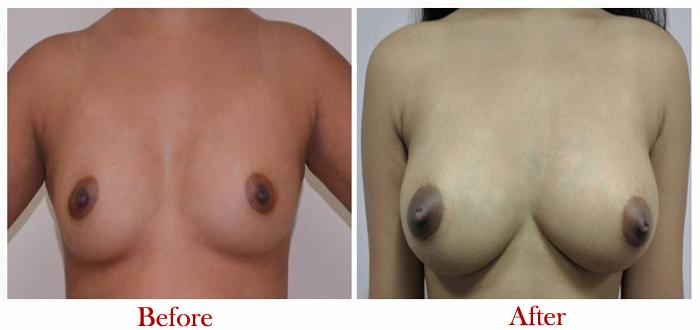 Breast Augmentation Surgery in Delhi