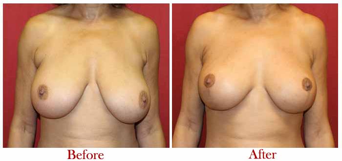 Breast lift surgery cost in delhi