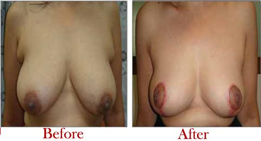 Breast Lift Surgery in Delhi
