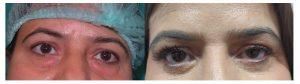 Blephroplasty Before After