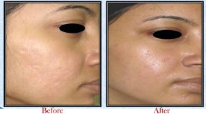 Acne Scar Removal Before After