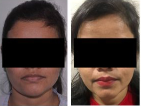 Chin Reshaping Before After