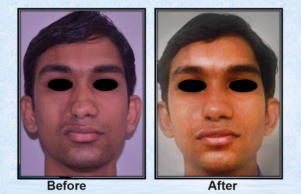Fat Injection Before After