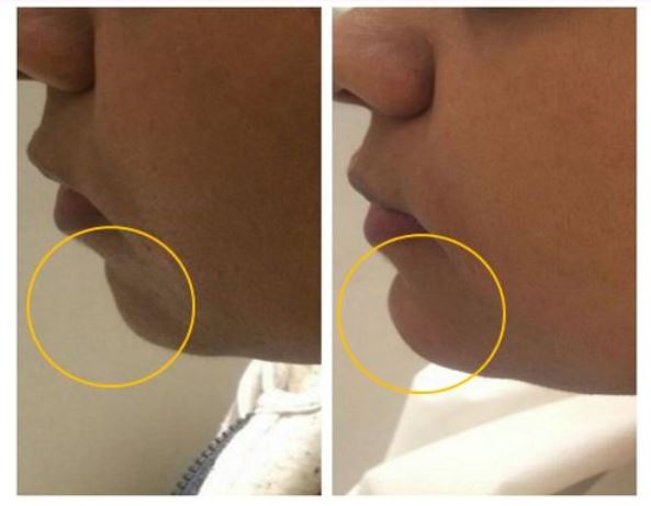 Fillers Treatment Before After