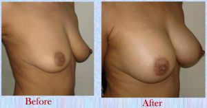 Breast Implant Before After