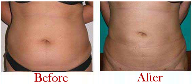 Liposuction Before After