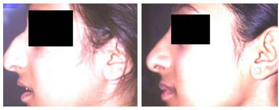 Nose Reshaping Before After