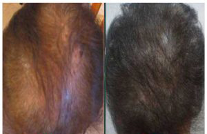 PRP Treatment Before After