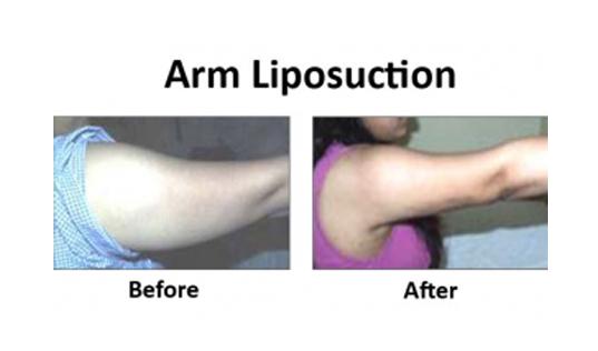 Best liposuction surgeon in delhi