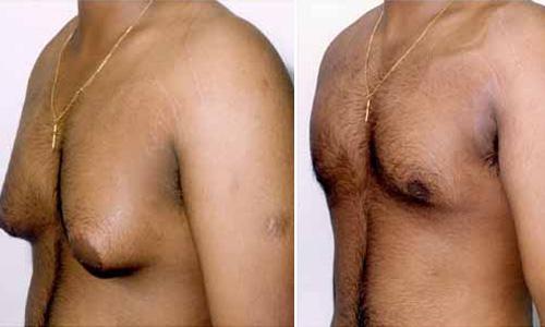 Male Breast Reduction Surgery in Delhi