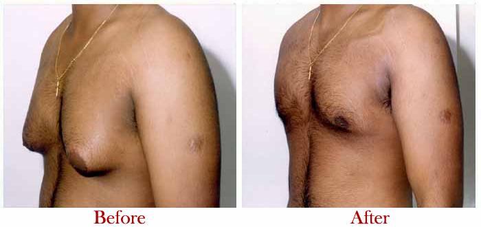 Male breast reduction in delhi