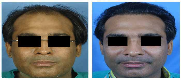 Hair transplant cost in delhi