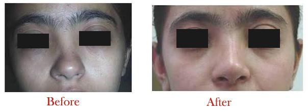 Nose surgery cost in delhi