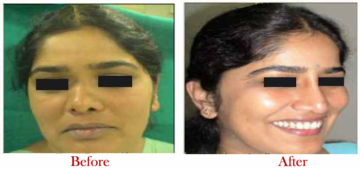 Nose surgery price in india