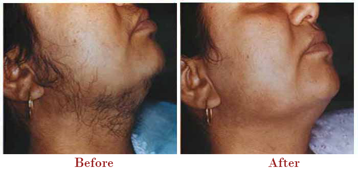 Pain Free Hair Removal in Delhi