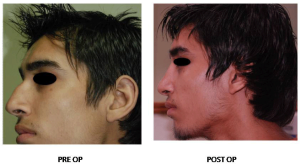 Best rhinoplasty surgeon in india