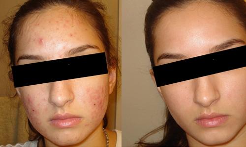 Scars Treatment in Delhi