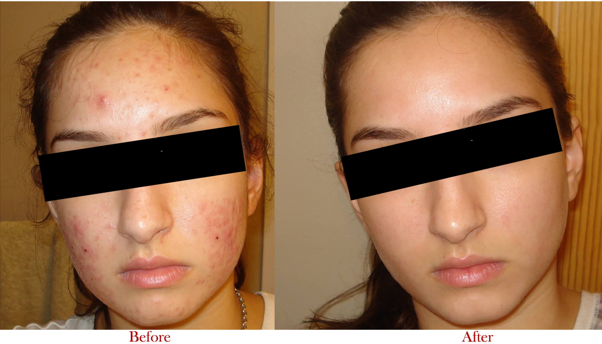 Scars Treatment in Delhi