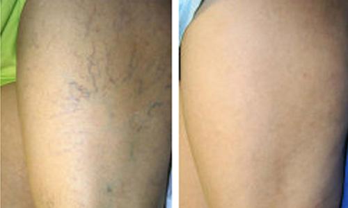 Skin Procedures in Delhi