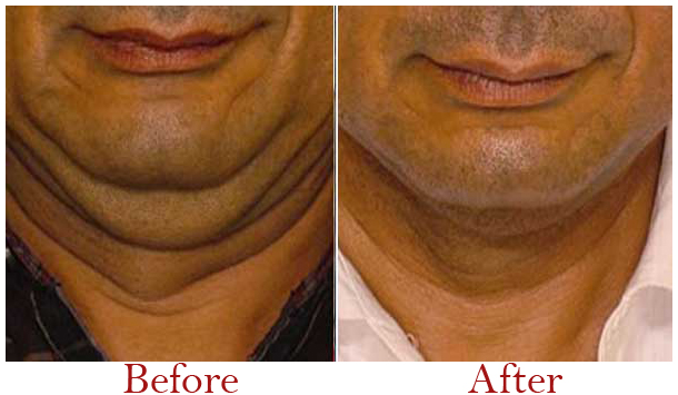 Thermage Treatment in Delhi